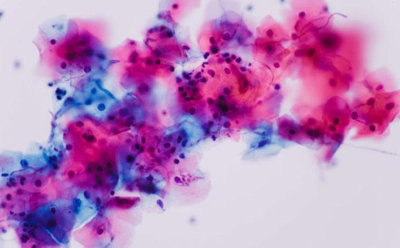 Candida-Test / Pilznachweis im Darm