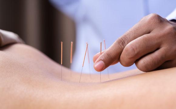 Akupunktur / TCM